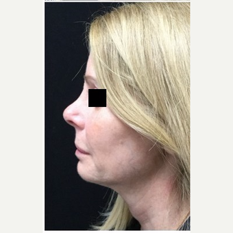 55-64 year old woman treated with Revision Rhinoplasty before 3187237
