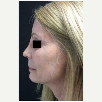 55-64 year old woman treated with Revision Rhinoplasty after 3187237