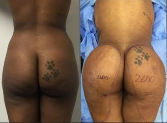Woman treated with Brazilian Butt Lift before 2656098
