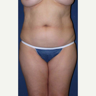 25-34 year old woman treated with SAFELipo before 3125932