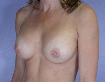 Breast Augmentation after 281422