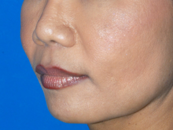 45-54 year old woman treated with Cheek Augmentation, Upper Lip Lift, Corner Lip Lift