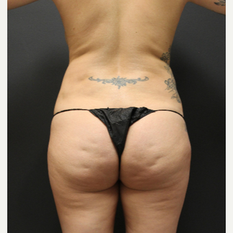 35-44 year old woman treated with Smart Lipo before 3286877