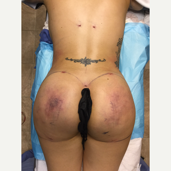 35-44 year old woman treated with Smart Lipo after 3286877
