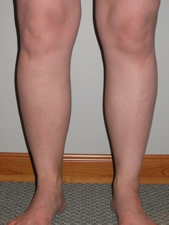 Liposuction of ankles and calves before 295531