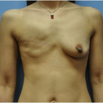 35-44 year old woman treated with Breast Reconstruction
