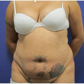 45-54 year old woman treated with Tummy Tuck before 2509292