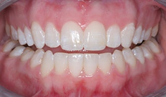 Invisalign after 372757