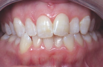 Invisalign before 372757
