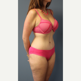 35-44 year old woman treated with Tummy Tuck after 3501414