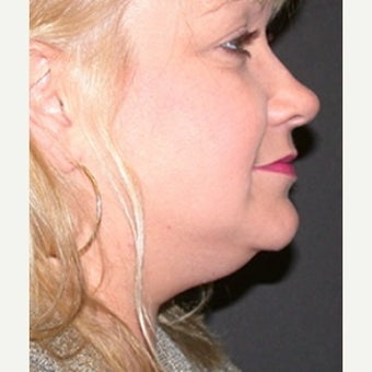Chin Liposuction before 1808943