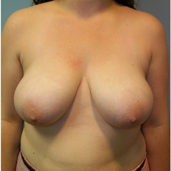 25-34 year old woman treated with Breast Reduction before 2258469