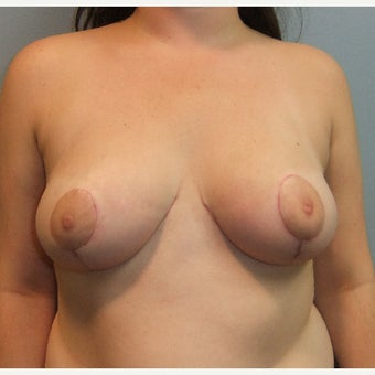 25-34 year old woman treated with Breast Reduction after 2258469