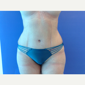 35-44 year old woman treated with Tummy Tuck after 3767356