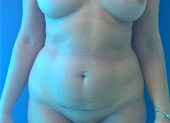 35-44 year old woman treated with Tummy Tuck before 3767356