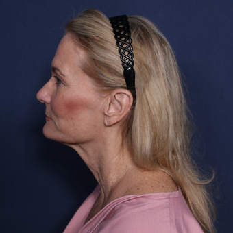 55-64 year old woman treated with Neck Lift (view 2 of 2) before 3175377