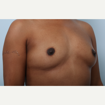 Breast Augmentation before 3340316