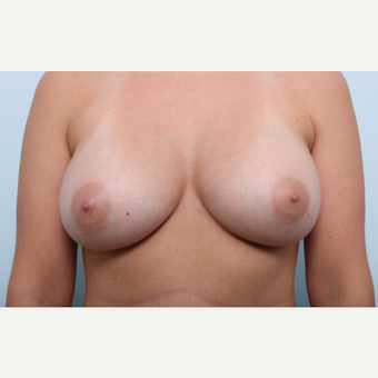 Breast Augmentation after 3508137