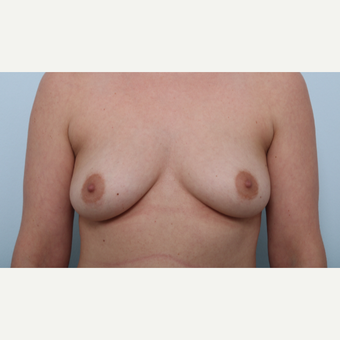 Breast Augmentation before 3508137