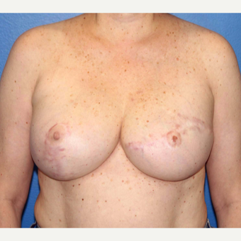 55-64 year old woman treated with Breast Reconstruction after 3266399