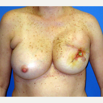 55-64 year old woman treated with Breast Reconstruction before 3266399