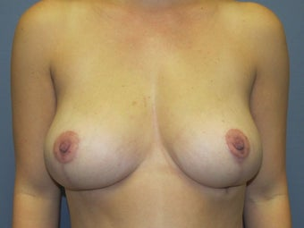 Breast Reduction, Fat Transfer after 549953