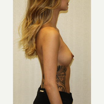 18-24 year old woman treated with Breast Augmentation before 3684855