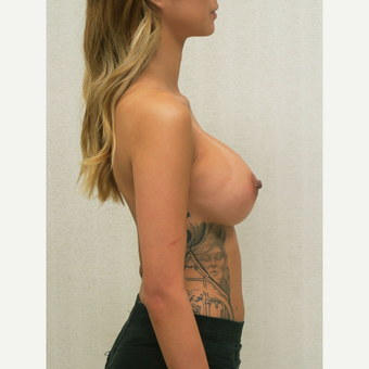 18-24 year old woman treated with Breast Augmentation after 3684855
