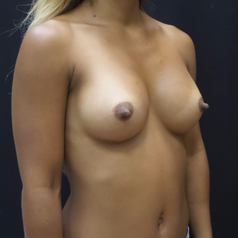Breast Augmentation after 3007819