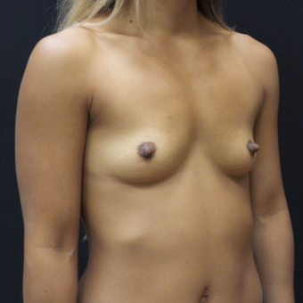 Breast Augmentation before 3007819