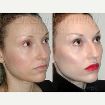 25-34 year old woman treated with Cheek Augmentation using Radiesse after 2341896