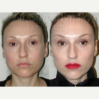 25-34 year old woman treated with Cheek Augmentation using Radiesse before 2341896