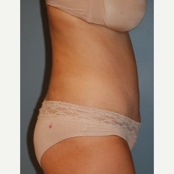 35-44 year old woman treated with Tummy Tuck after 3609825