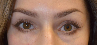 25-34 year old woman treated with Restylane after 3789507