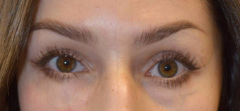 25-34 year old woman treated with Restylane before 3789507