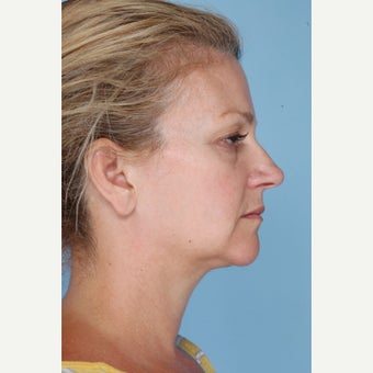 45-54 year old woman treated with Ultherapy before 1794403
