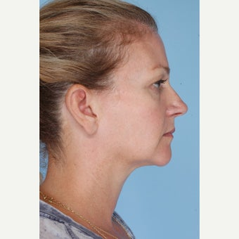 45-54 year old woman treated with Ultherapy after 1794403