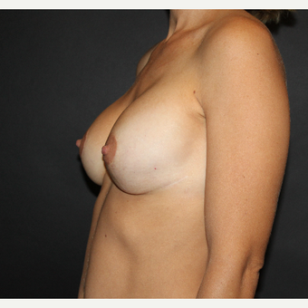 Repair of botched breast lift and augmentation after 3690687