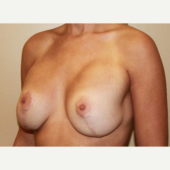 Repair of botched breast lift and augmentation before 3690687