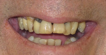 Before and After Permanent Teeth-in-1-Day before 1919871