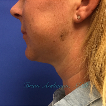 35-44 year old woman treated with Kybella for double chin reduction after 3151946