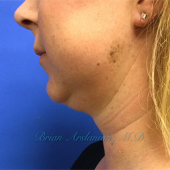 35-44 year old woman treated with Kybella for double chin reduction before 3151946