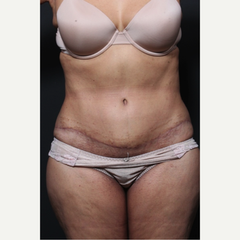 65-74 year old woman treated with Tummy Tuck 1659783