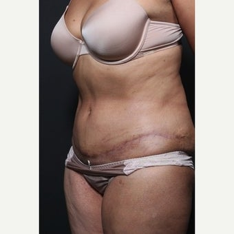 65-74 year old woman treated with Tummy Tuck after 1659783
