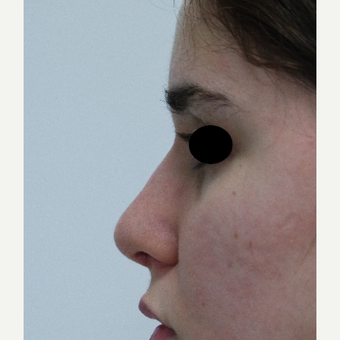 18-24 year old woman treated with Rhinoplasty after 3638032