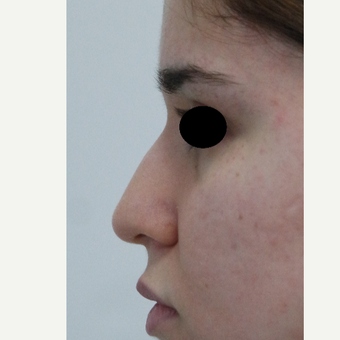 18-24 year old woman treated with Rhinoplasty before 3638032