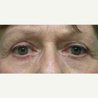 55-64 year old woman treated with Eyelid Surgery after 3802372