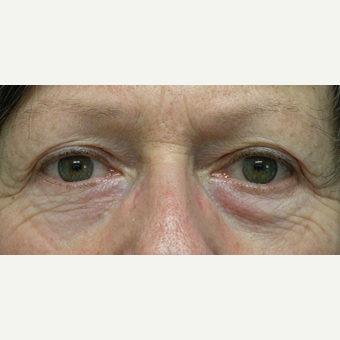 55-64 year old woman treated with Eyelid Surgery before 3802372