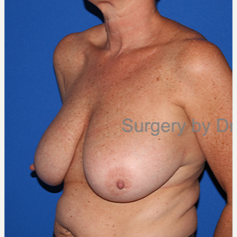 45-54 year old woman treated with Breast Reduction before 3432327