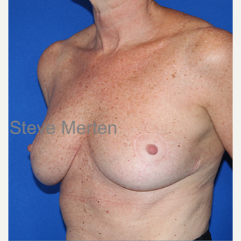 45-54 year old woman treated with Breast Reduction after 3432327